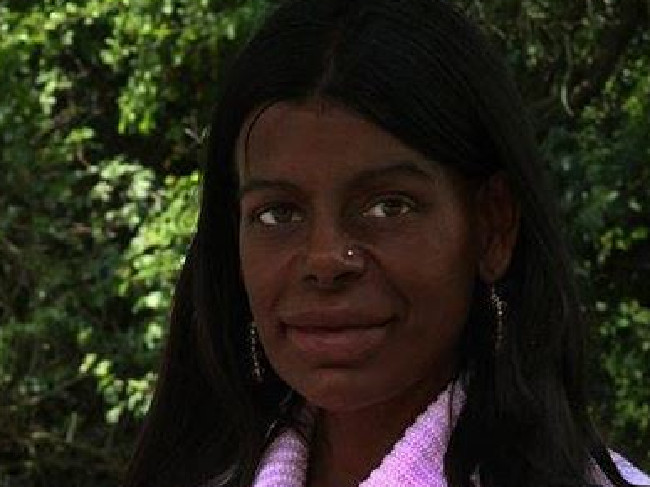 White Woman Turned Black Claims Tanning Injections Saw Her Hair Also Become Naturally African